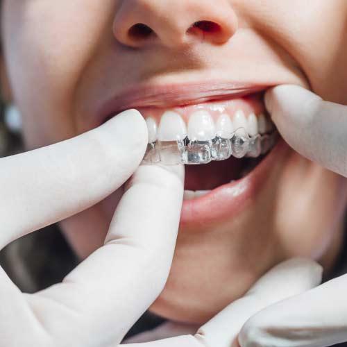Invisalign at Baker Ranch Dental Spa & Implant Center your dentist in Irvine, CA