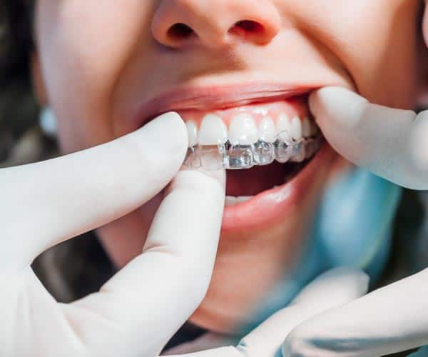 Invisalign-in-Baker-ranch-Dentistry-and-Implant-Center-Dentist-in-Lake-Forest