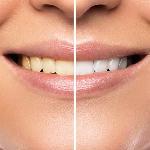 Teeth Whitening at Baker Ranch Dental Spa & Implant Center Your Dentist in Irvine, CA