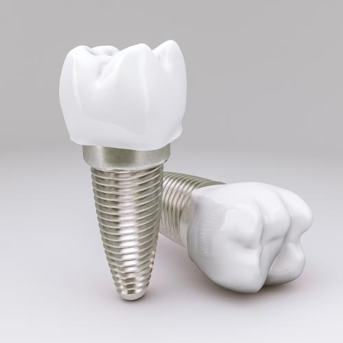 Dental Implants at Baker Ranch Dentistry your Dentist in Mission Viejo, CA