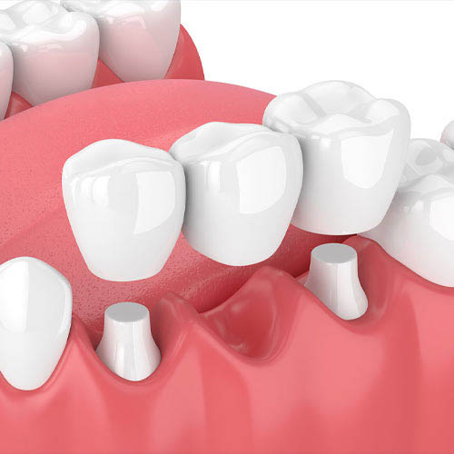 Dental Bridge at Baker Ranch Dental Spa & Implant Center - Dentist in Irvine CA