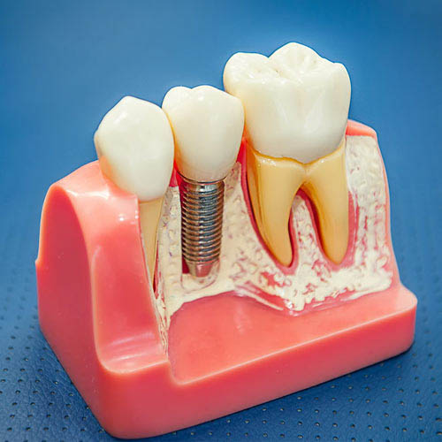 Dental Implant with Crown at Baker Ranch Dental Spa & Implant Center - Dentist in Lake Forest CA