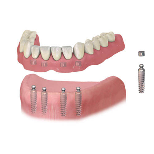 Implant Dentures at Baker Ranch Dental Spa & Implant Center - Dentist in Irvine CA